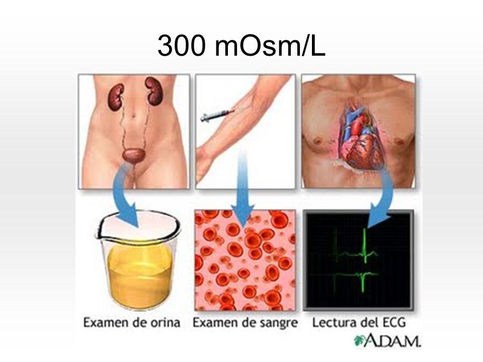 Caso Clínico Nº 2 Calcio(POS) Requerimiento: 10-15 mEq/día ó 0.2 – 0.3 mEq/Kg/día 0.2mEq X 54 Kg= 10.8 mEq/día Niveles de Calcio Corregidos: Valor real en sangre Calcio + [(4 – Albúmina) X 0.8]= 3.36 6.5 + [(4 – 1.9) X 0.8]= 8.18 mg Administración del Calcio: Ampolla de gluconato de calcio de 10 cc= 4.5 mEq de Calcio 10 cc - 4.5 mEq X 10.8 mEq X= 24 cc – 2.4 ampolla Segunda opción: Suministrar 3 ampollas = 13.5 mEq = 0.25 mEq/Kg/día