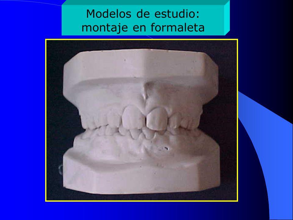 Vista lateral de los modelos en oclusión
