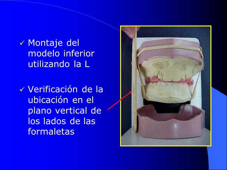 Montaje del modelo inferior utilizando la L Verificación de la ubicación en el plano vertical de los lados de las formaletas