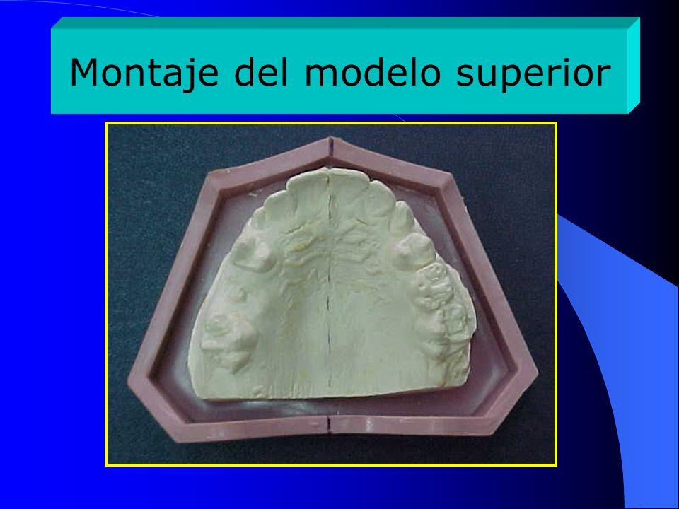 Modelo superior