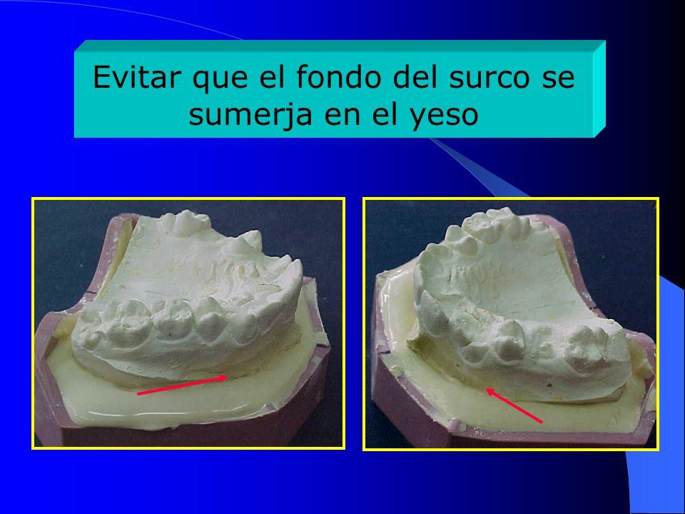 Verificación del plano oclusal paralelo a la base