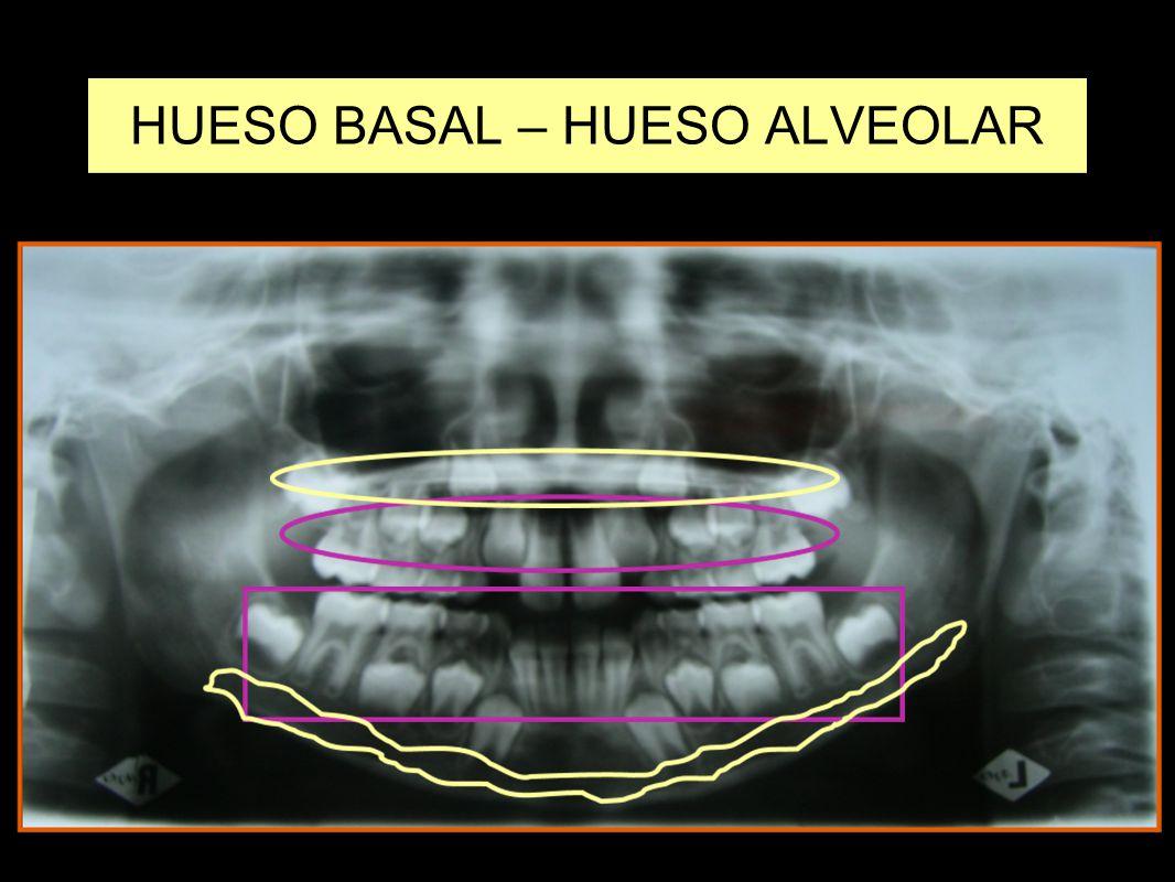 HUESO BASAL – HUESO ALVEOLAR
