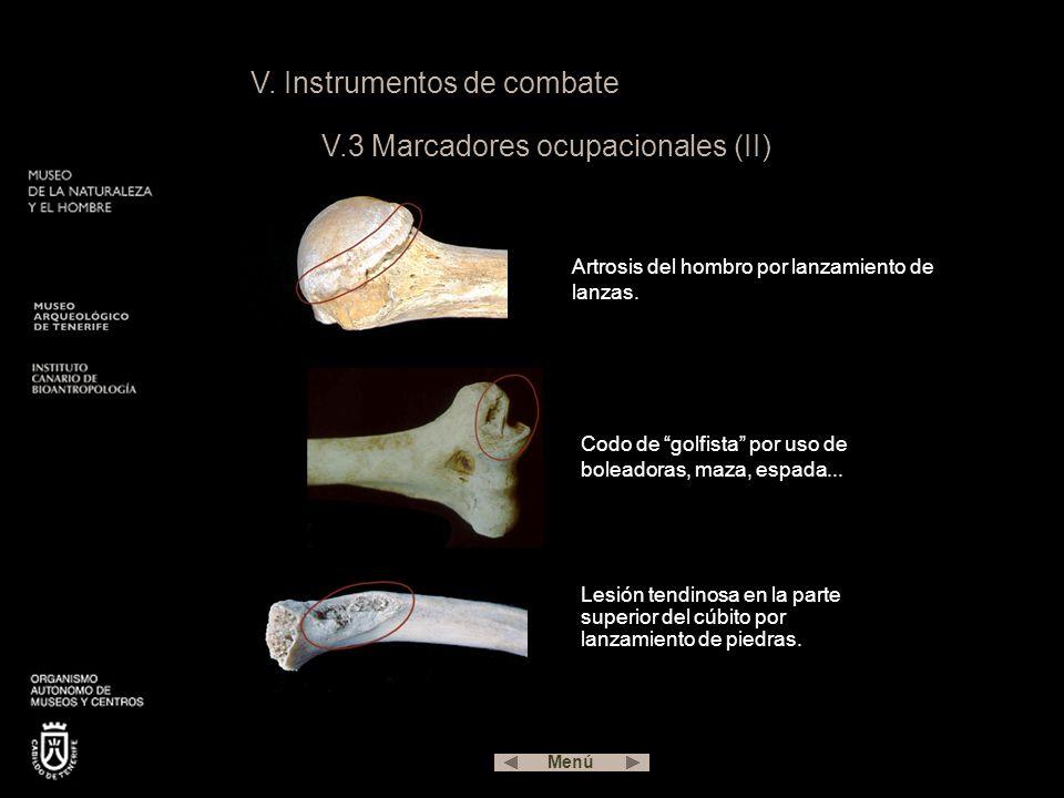 V. Instrumentos de combate V.3 Marcadores ocupacionales (II) Artrosis del hombro por lanzamiento de lanzas. Codo de golfista por uso de boleadoras, ma