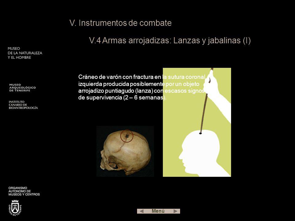 V. Instrumentos de combate V.4 Armas arrojadizas: Lanzas y jabalinas (I) Cráneo de varón con fractura en la sutura coronal izquierda producida posible