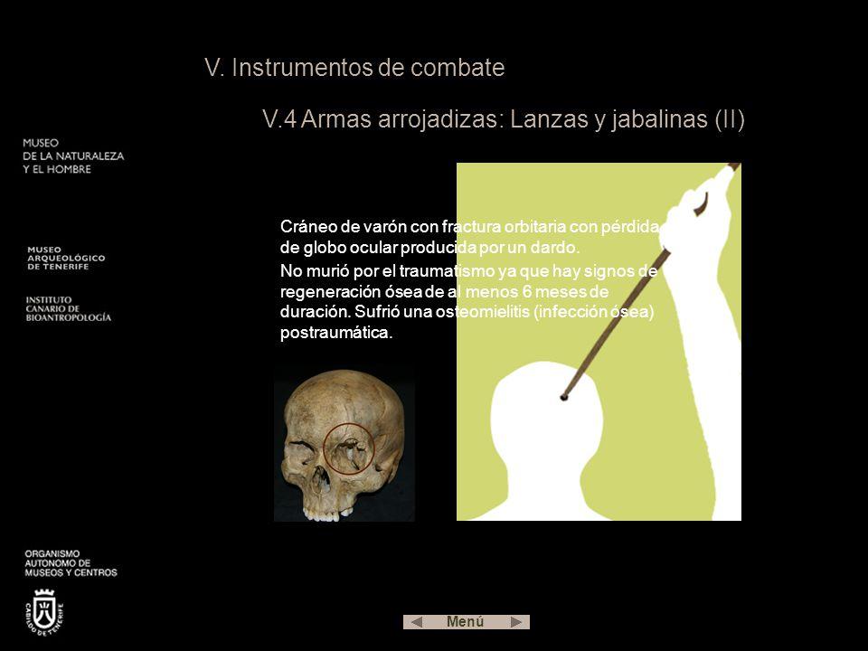 V. Instrumentos de combate V.4 Armas arrojadizas: Lanzas y jabalinas (II) Cráneo de varón con fractura orbitaria con pérdida de globo ocular producida