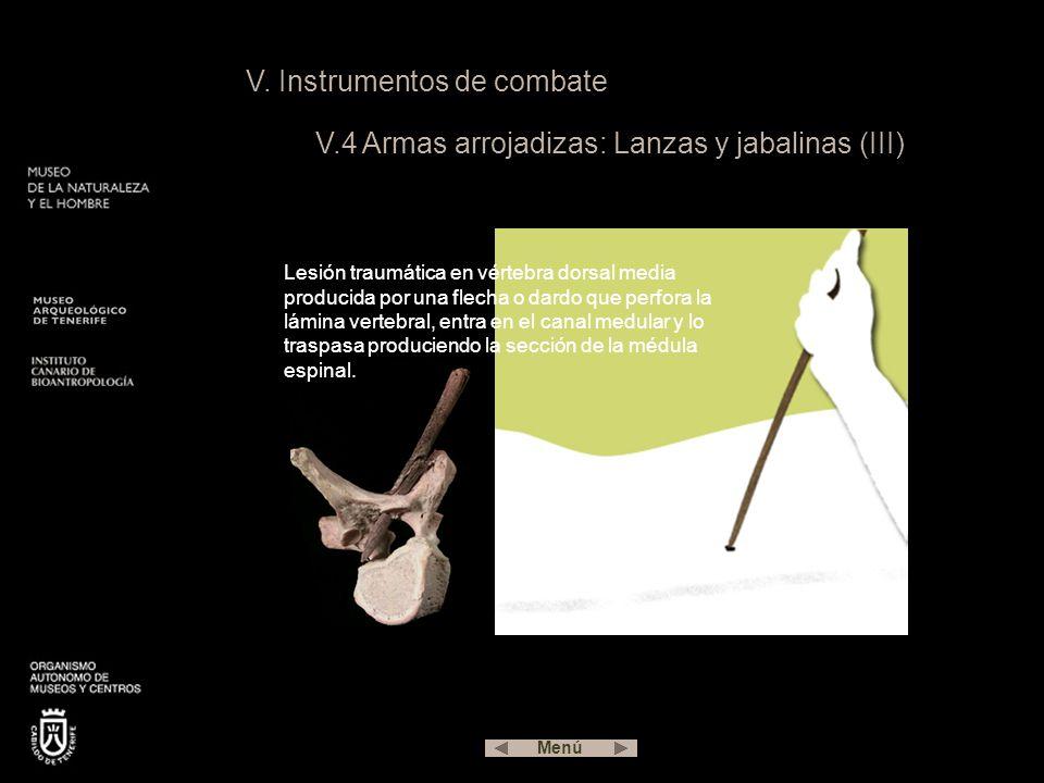 V. Instrumentos de combate V.4 Armas arrojadizas: Lanzas y jabalinas (III) Lesión traumática en vértebra dorsal media producida por una flecha o dardo