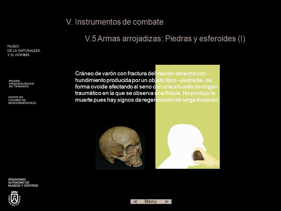V. Instrumentos de combate V.5 Armas arrojadizas: Piedras y esferoides (I) Cráneo de varón con fractura del maxilar derecho con hundimiento producida