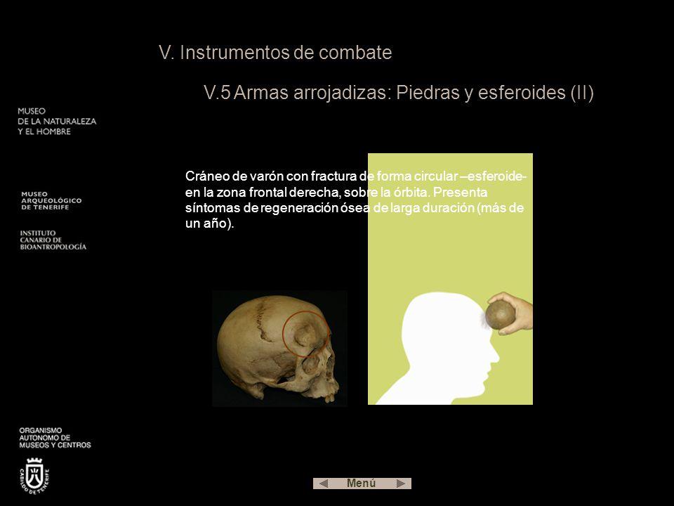 V. Instrumentos de combate V.5 Armas arrojadizas: Piedras y esferoides (II) Cráneo de varón con fractura de forma circular –esferoide- en la zona fron