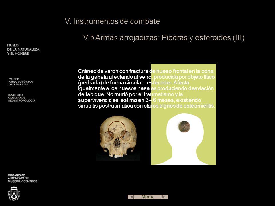 V. Instrumentos de combate V.5 Armas arrojadizas: Piedras y esferoides (III) Cráneo de varón con fractura de hueso frontal en la zona de la gabela afe