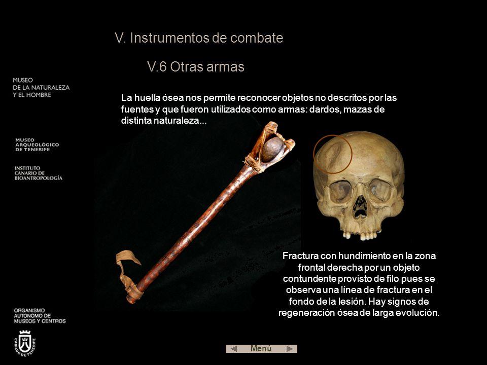 V. Instrumentos de combate V.6 Otras armas La huella ósea nos permite reconocer objetos no descritos por las fuentes y que fueron utilizados como arma