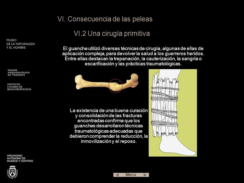 VI. Consecuencia de las peleas VI.2 Una cirugía primitiva El guanche utilizó diversas técnicas de cirugía, algunas de ellas de aplicación compleja, pa