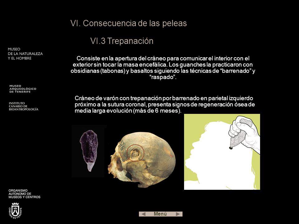 VI. Consecuencia de las peleas VI.3 Trepanación Consiste en la apertura del cráneo para comunicar el interior con el exterior sin tocar la masa encefá