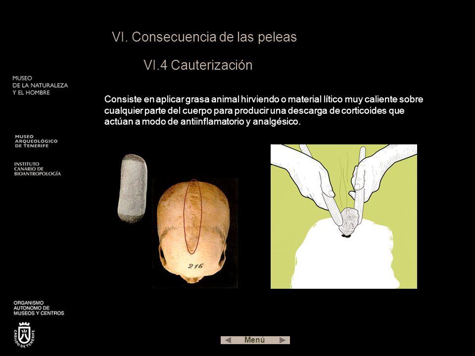 VI. Consecuencia de las peleas VI.4 Cauterización Consiste en aplicar grasa animal hirviendo o material lítico muy caliente sobre cualquier parte del
