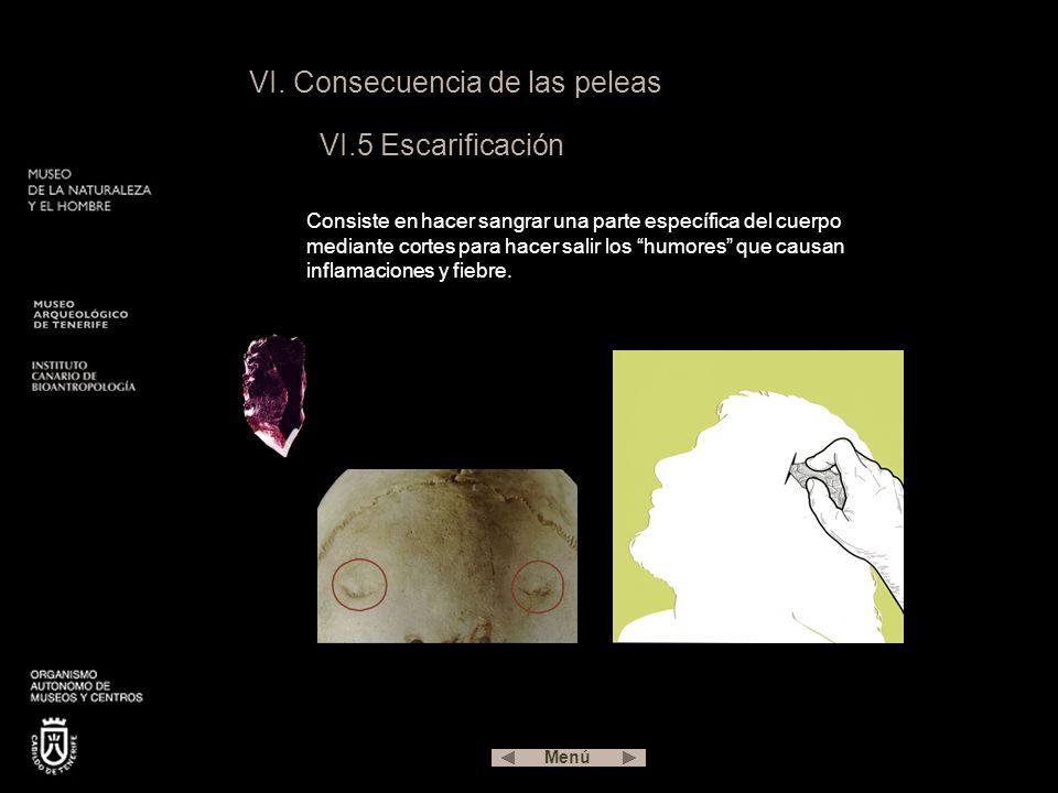 VI. Consecuencia de las peleas VI.5 Escarificación Consiste en hacer sangrar una parte específica del cuerpo mediante cortes para hacer salir los humo