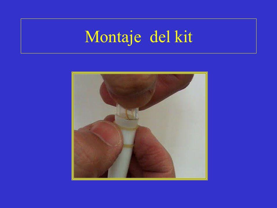 Utilidad del kit Este kit lo utilizamos desde hace mas de 4a, con una gran efectividad.(video).