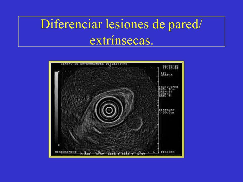 Diferenciar lesiones de pared/ extrínsecas.