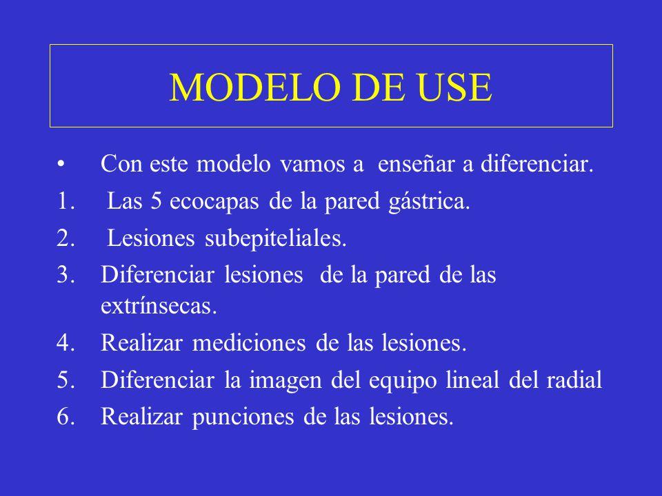 Con este modelo vamos a enseñar a diferenciar. 1. Las 5 ecocapas de la pared gástrica. 2. Lesiones subepiteliales. 3.Diferenciar lesiones de la pared
