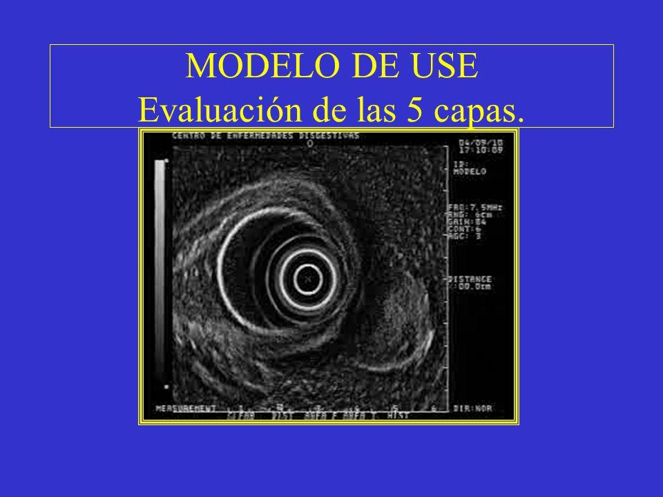 MODELO DE USE Evaluación de las 5 capas.
