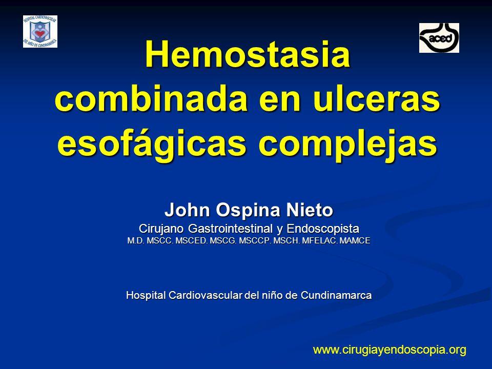 Caso clínico Paciente de 23 años VIH (+) Paciente de 23 años VIH (+) Conocido Cuadro de dolor retroesternal Conocido Cuadro de dolor retroesternal Endoscopia Ulceras esofágicas por Citomegalovirus Endoscopia Ulceras esofágicas por Citomegalovirus Hemostasia combinada en esófago Dr.