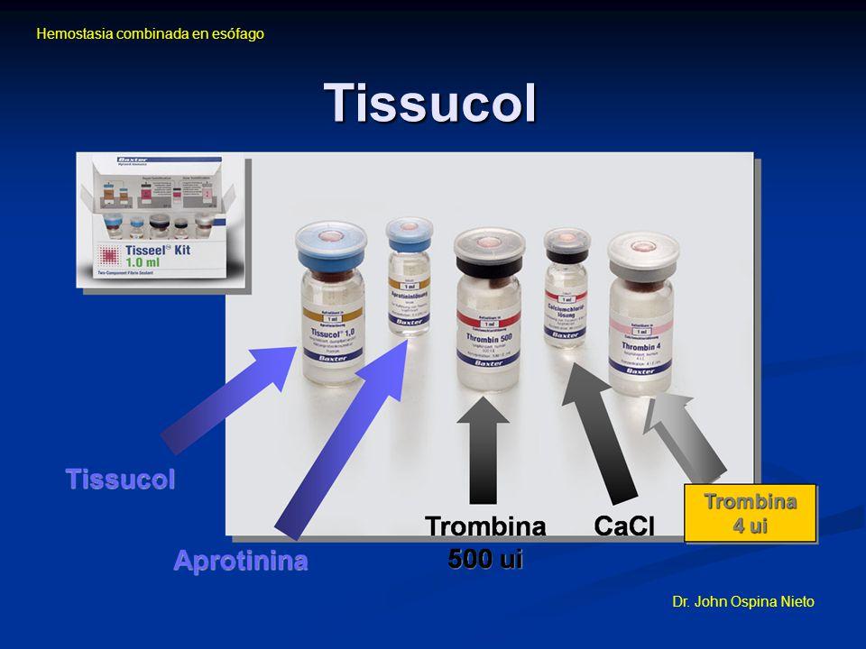 Hemostasia combinada en esófago Dr. John Ospina Nieto