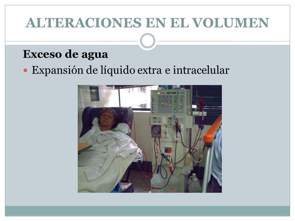 ALTERACIONES EN EL VOLUMEN Exceso de agua Expansión de líquido extra e intracelular