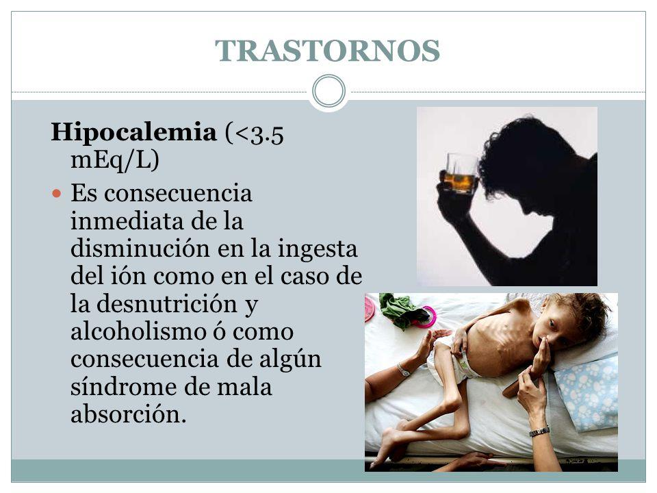 TRASTORNOS Hipocalemia (<3.5 mEq/L) Es consecuencia inmediata de la disminución en la ingesta del ión como en el caso de la desnutrición y alcoholismo ó como consecuencia de algún síndrome de mala absorción.