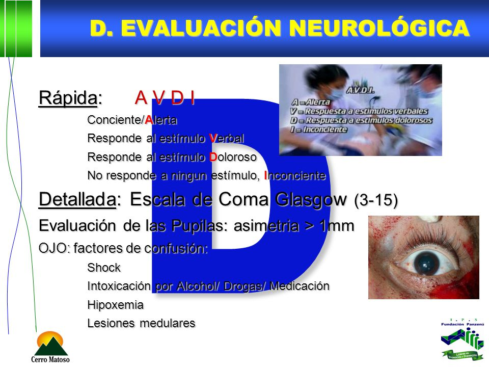 D. EVALUACIÓN NEUROLÓGICA D Rápida:A V D I Conciente/Alerta Responde al estímulo Verbal Responde al estímulo Doloroso No responde a ningun estímulo, I