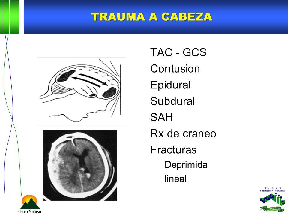 TRAUMA A CABEZA TAC - GCS Contusion Epidural Subdural SAH Rx de craneo Fracturas Deprimida lineal