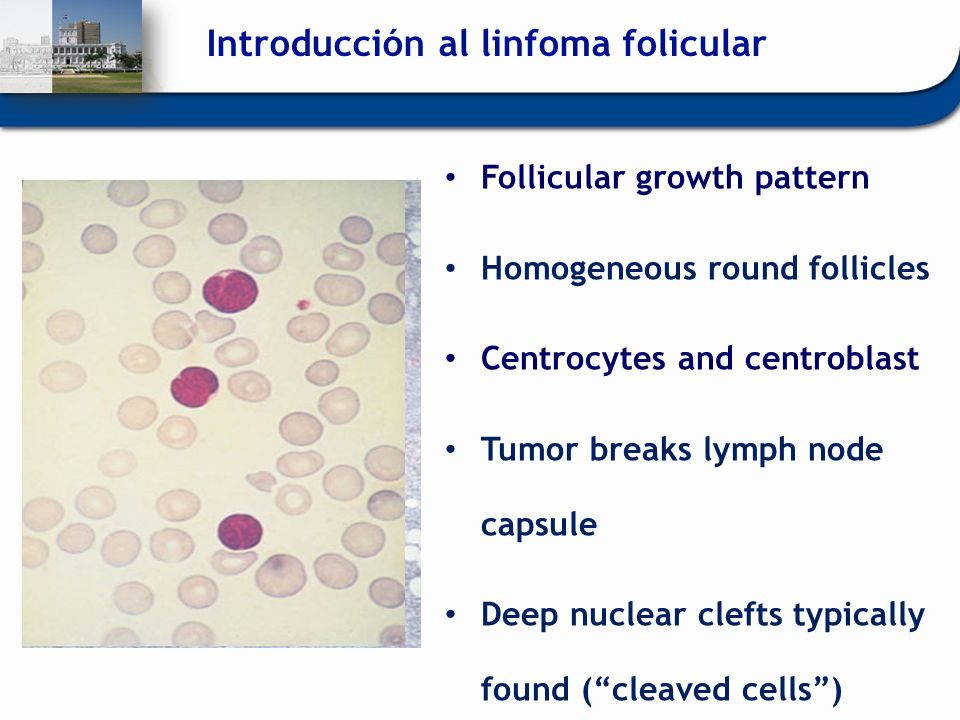 Follicular growth pattern Homogeneous round follicles Centrocytes and centroblast Tumor breaks lymph node capsule Deep nuclear clefts typically found