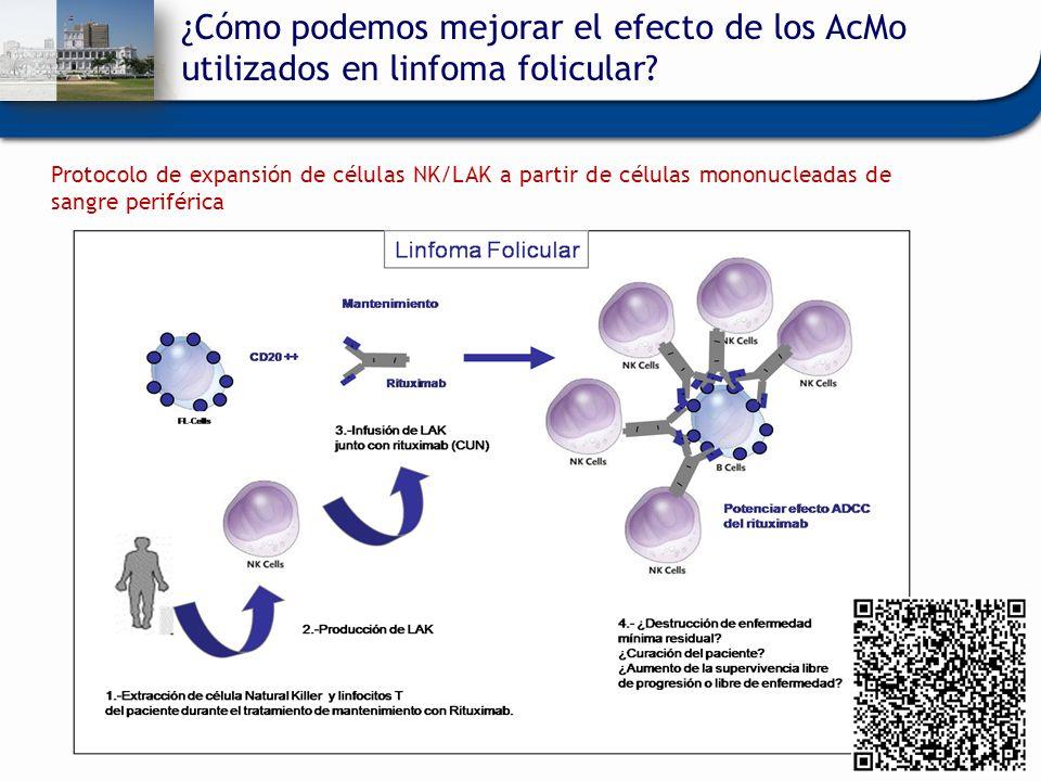 ¿Cómo podemos mejorar el efecto de los AcMo utilizados en linfoma folicular? Protocolo de expansión de células NK/LAK a partir de células mononucleada