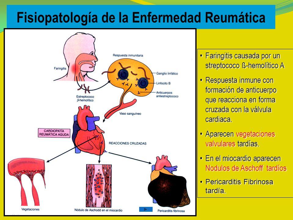 Fisiopatología de la Enfermedad Reumática Faringitis causada por un streptococo ß-hemolítico AFaringitis causada por un streptococo ß-hemolítico A Respuesta inmune con formación de anticuerpo que reacciona en forma cruzada con la válvula cardiaca.Respuesta inmune con formación de anticuerpo que reacciona en forma cruzada con la válvula cardiaca.