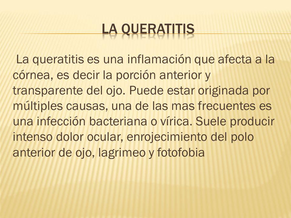 La queratitis es una inflamación que afecta a la córnea, es decir la porción anterior y transparente del ojo.