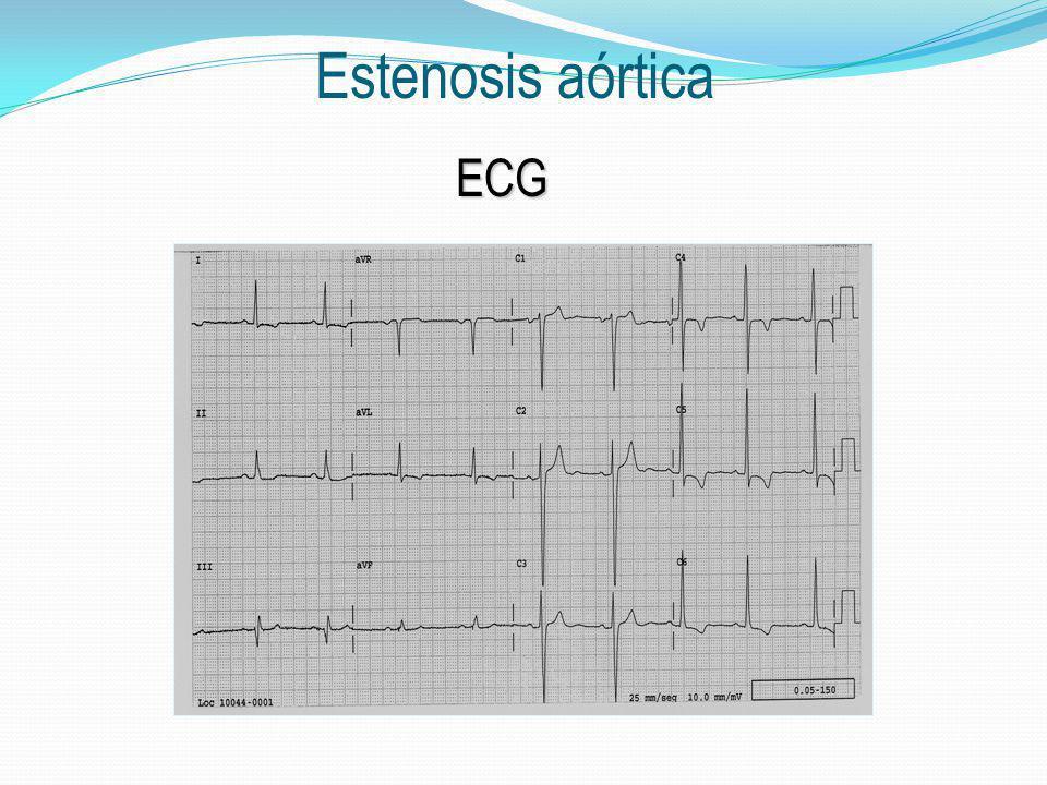ECG Estenosis aórtica