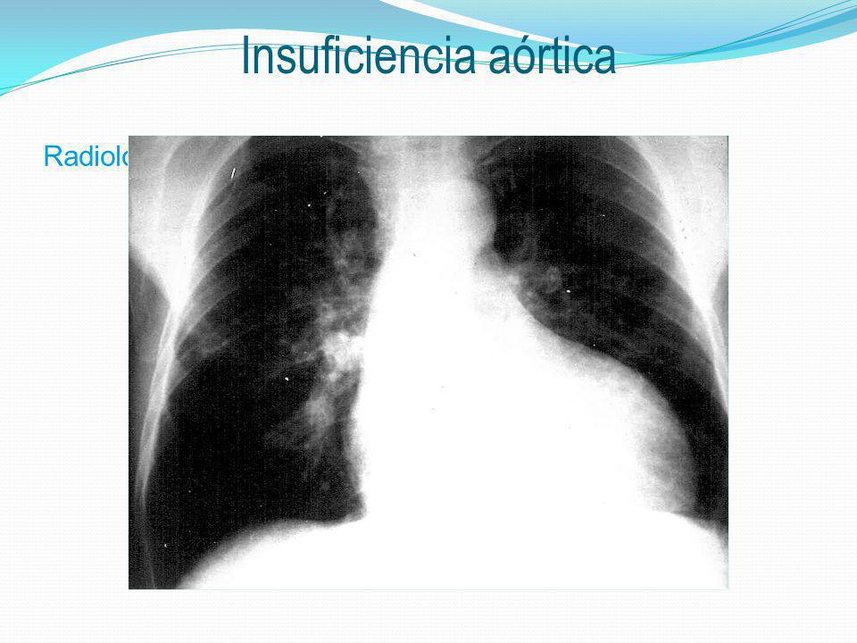 a Radiología Insuficiencia aórtica