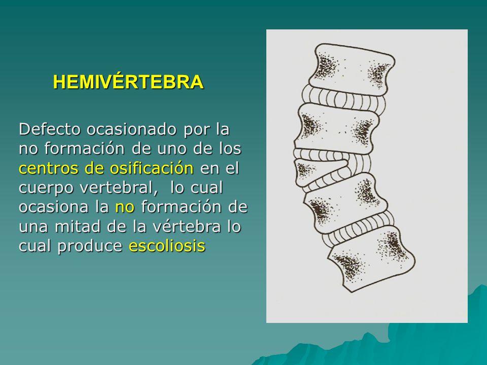 Defecto ocasionado por la no formación de uno de los centros de osificación en el cuerpo vertebral, lo cual ocasiona la no formación de una mitad de la vértebra lo cual produce escoliosis HEMIVÉRTEBRA