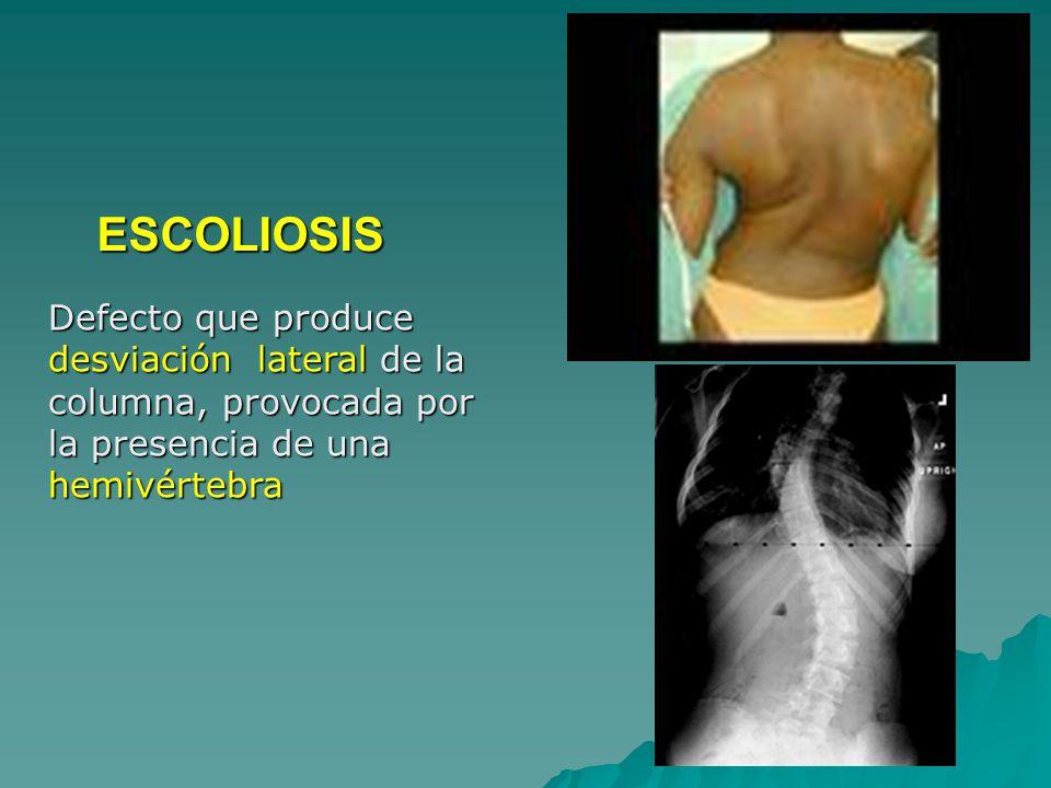 Defecto que produce desviación lateral de la columna, provocada por la presencia de una hemivértebra ESCOLIOSIS