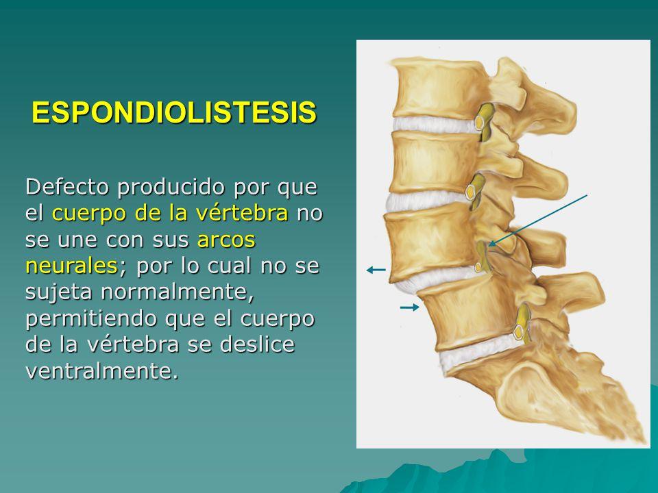 Defecto producido por que el cuerpo de la vértebra no se une con sus arcos neurales; por lo cual no se sujeta normalmente, permitiendo que el cuerpo de la vértebra se deslice ventralmente.