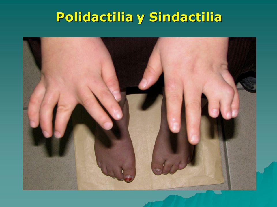 Polidactilia y Sindactilia