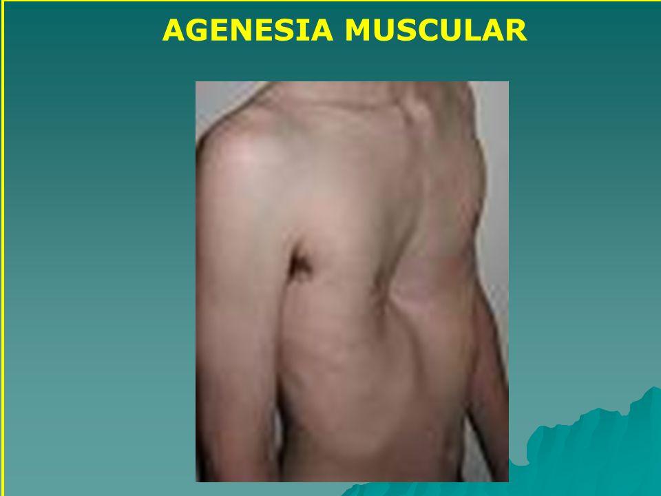 AGENESIA MUSCULAR