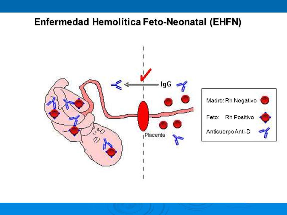Madre: Rh Negativo Feto: Rh Positivo Anticuerpo Anti-D Enfermedad Hemolítica Feto-Neonatal (EHFN)