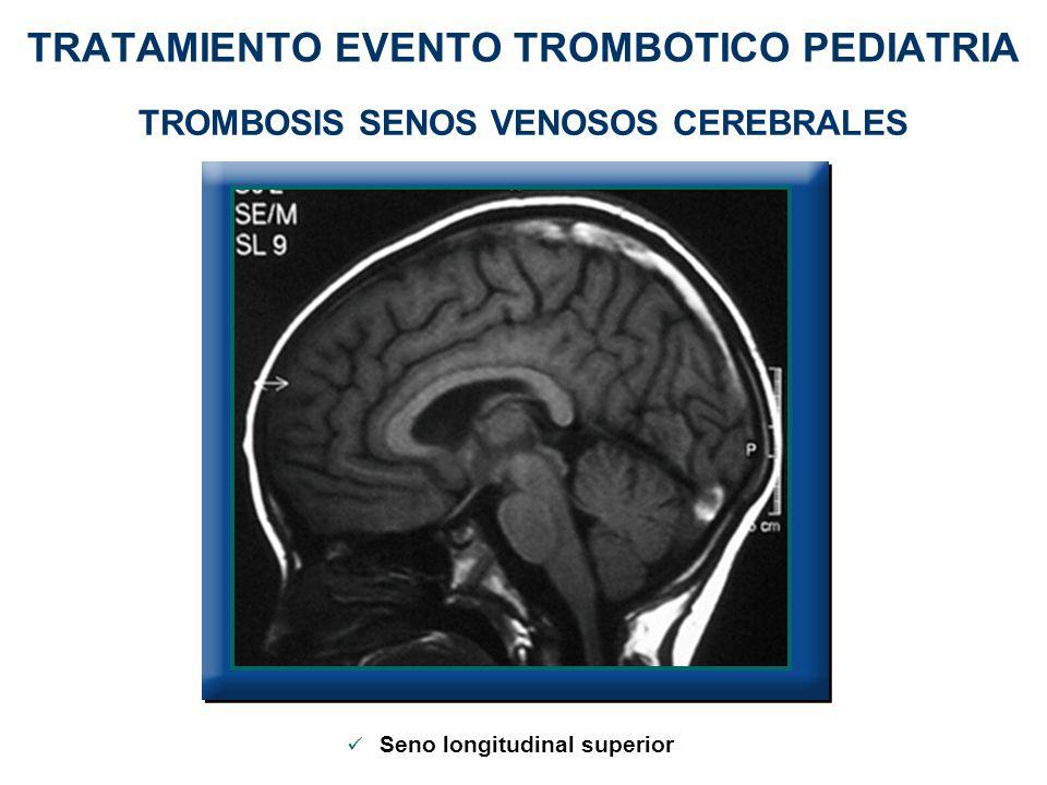 TRATAMIENTO EVENTO TROMBOTICO PEDIATRIA TROMBOSIS SENOS VENOSOS CEREBRALES Seno longitudinal superior
