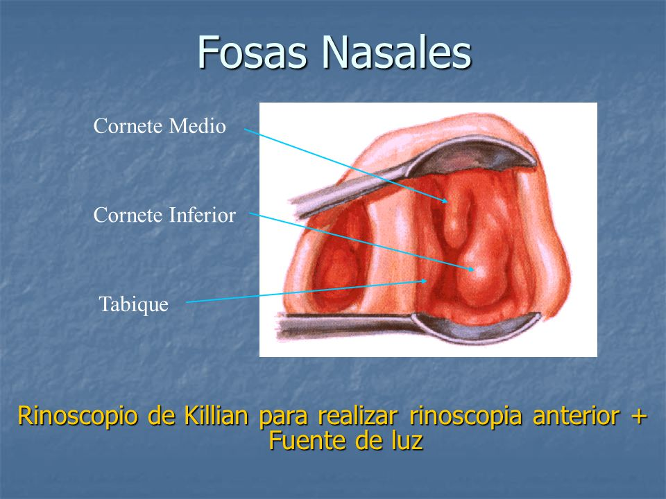 Fosas Nasales Rinoscopio de Killian para realizar rinoscopia anterior + Fuente de luz Tabique Cornete Medio Cornete Inferior