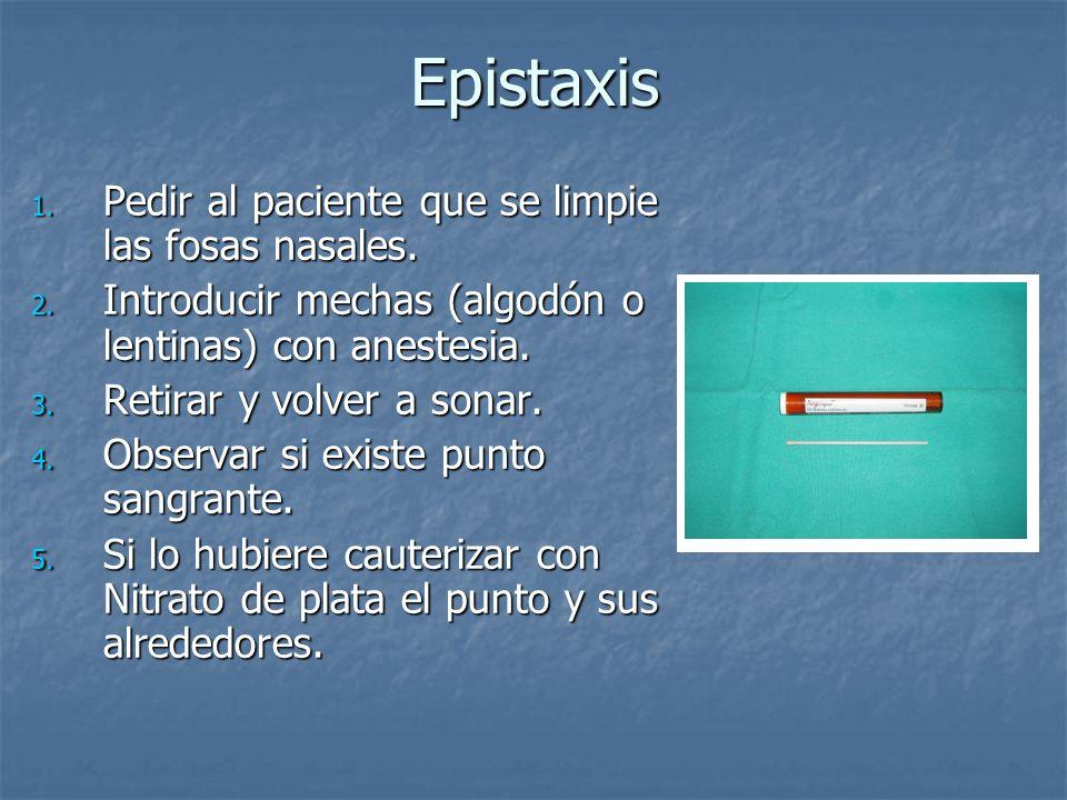 Epistaxis 1. Pedir al paciente que se limpie las fosas nasales. 2. Introducir mechas (algodón o lentinas) con anestesia. 3. Retirar y volver a sonar.