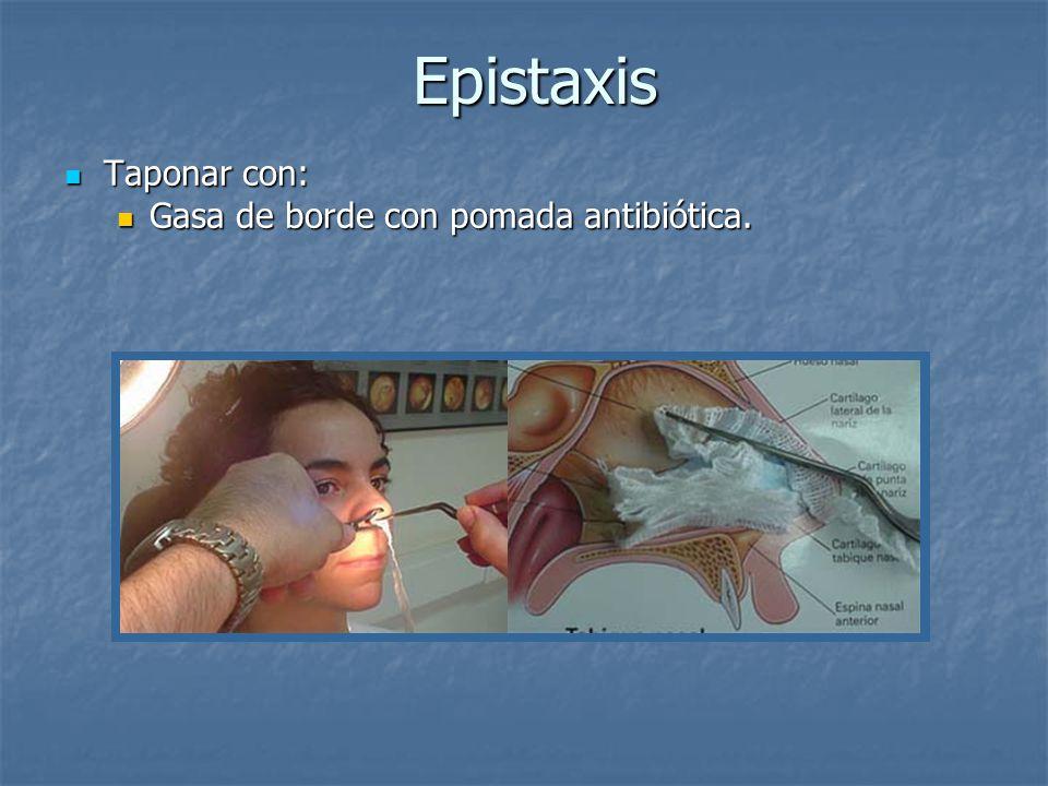 Epistaxis Epistaxis Taponar con: Taponar con: Gasa de borde con pomada antibiótica. Gasa de borde con pomada antibiótica.