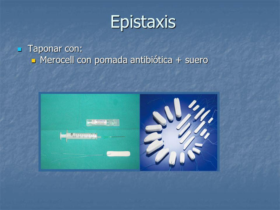 Epistaxis Epistaxis Taponar con: Taponar con: Merocell con pomada antibiótica + suero Merocell con pomada antibiótica + suero