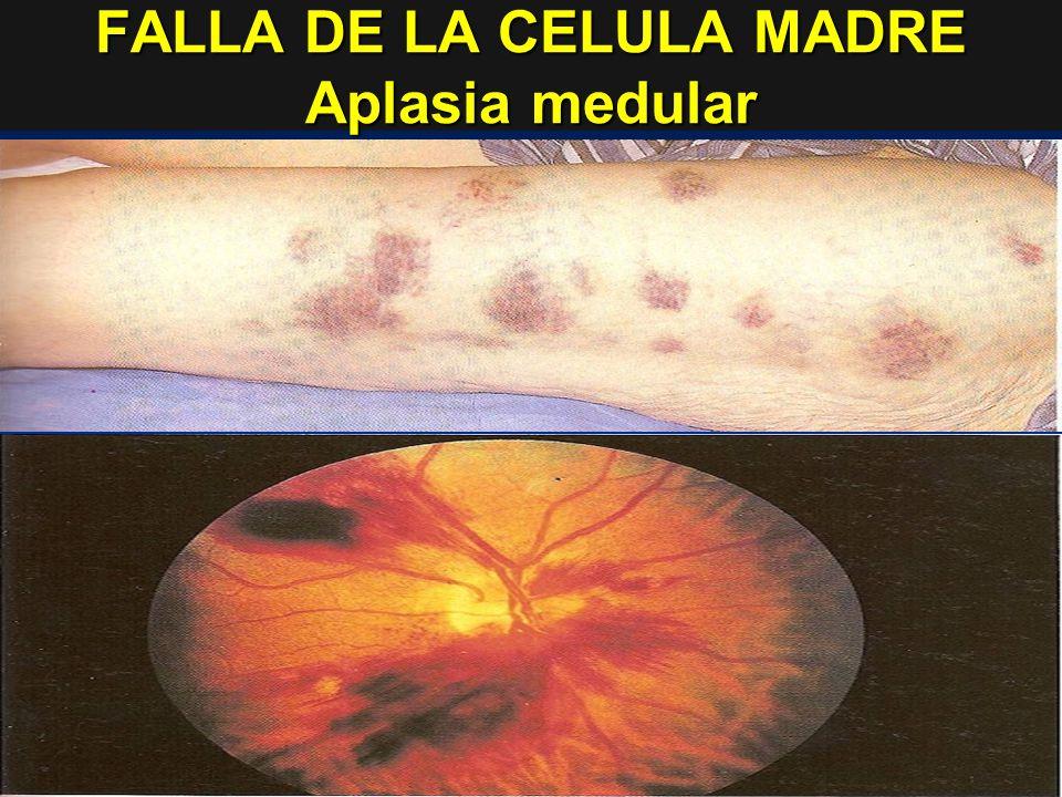 FALLA DE LA CELULA MADRE Aplasia medular