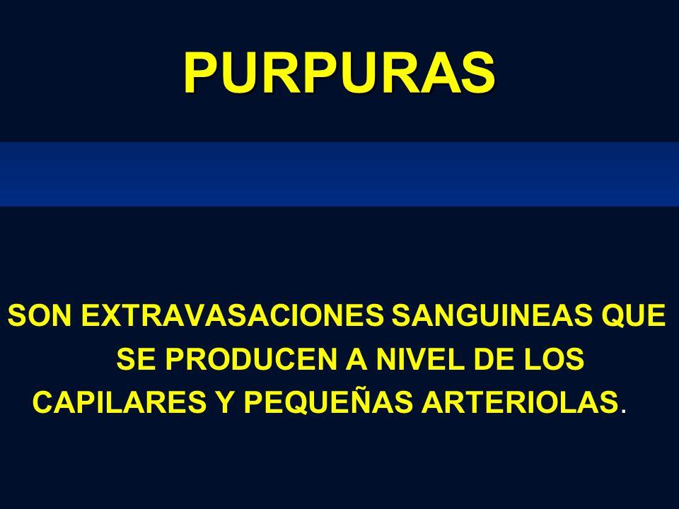 PURPURAS SON EXTRAVASACIONES SANGUINEAS QUE SE PRODUCEN A NIVEL DE LOS CAPILARES Y PEQUEÑAS ARTERIOLAS.