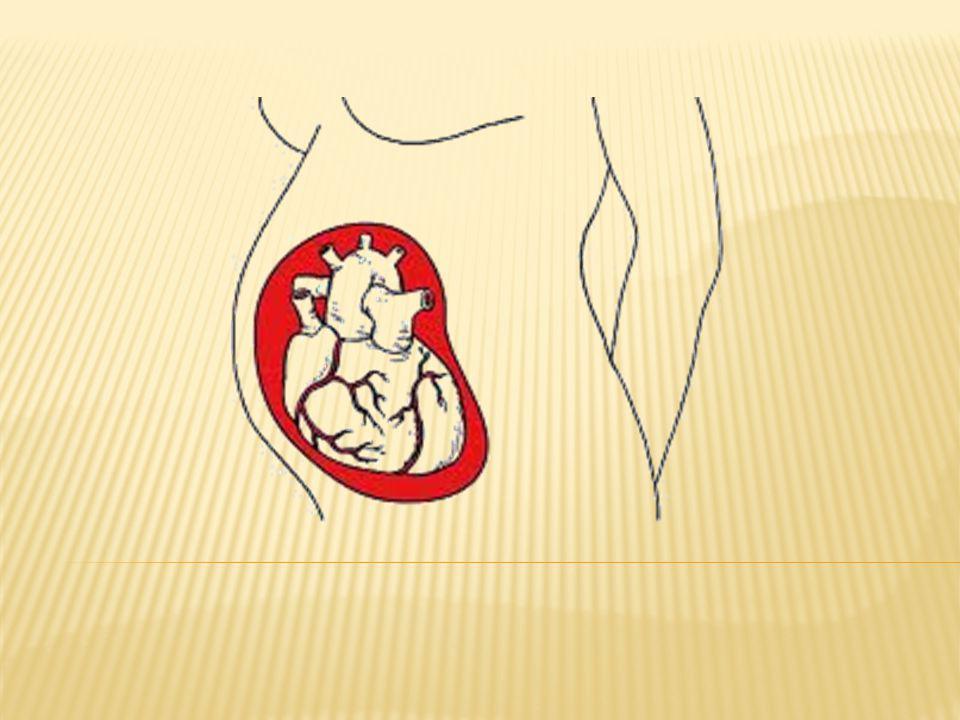 Control prenatal Diagnostico de cardiopatía Referencia al servicio especializado de cardiología Compartir diagnostico y plan de manejo conjunto Monitorizar clínicamente y mediante exámenes de laboratorio y gabinete, la función cardiaca Reevaluarse cada 2-4 semanas, especialmente entre las 28 -32