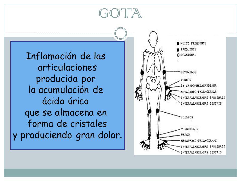 GOTA Inflamación de las articulaciones producida por la acumulación de ácido úrico que se almacena en forma de cristales y produciendo gran dolor.