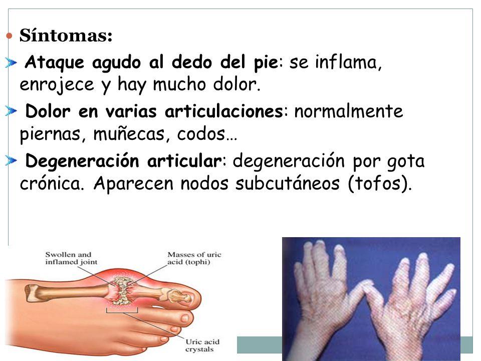 Síntomas: Ataque agudo al dedo del pie: se inflama, enrojece y hay mucho dolor.